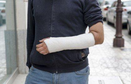 האם כל נזק גוף שנגרם מנפילה במהלך משחק כדורגל הוא בר פיצוי ?